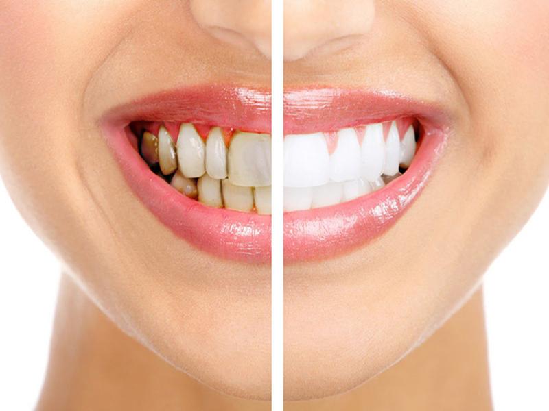 Cách làm trắng răng bị mảng bám, chân răng bị đen